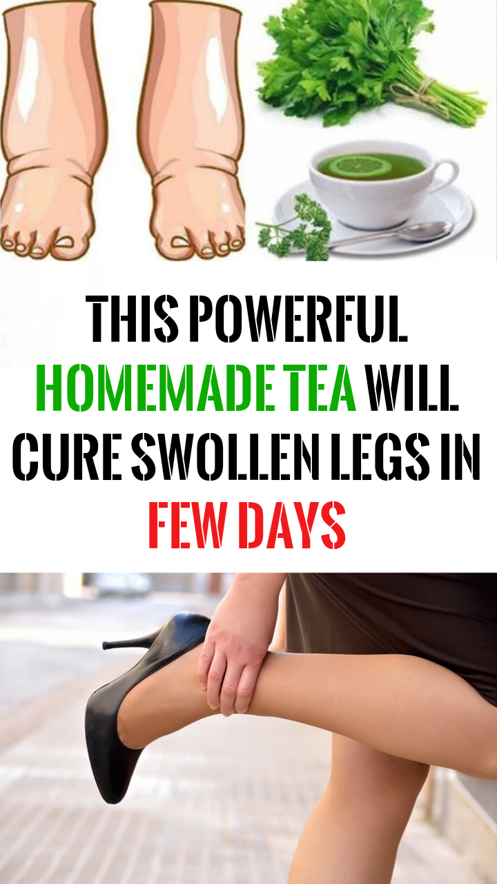 homemade tea swollen legs